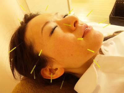 美容鍼灸耳つぼダイエット東京豊島区文京区新宿区鍼灸師募集