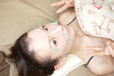 美容鍼灸口コミ東京豊島区文京区新宿区人気