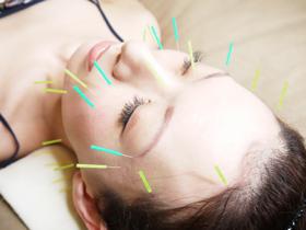 美容鍼灸 豊島区 文京区 新宿区 鍼灸師募集 法令線 ほうれい線