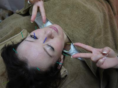 美容鍼灸 耳つぼダイエット 平成堂高田鍼灸整骨院 豊島区 文京区 新宿区