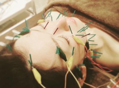 鍼治療を受けるキホン