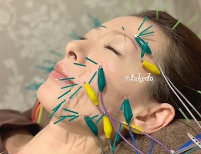 竹田竜太鍼灸整骨院 美容 美容鍼 電流美容鍼