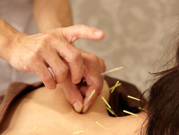 鍼灸治療で免疫力が上がる理由